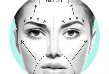 Face & Neck Lift Surgery