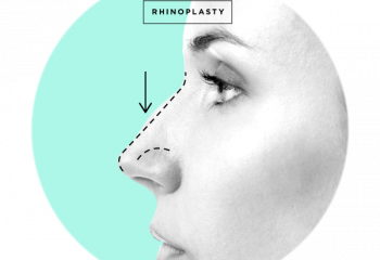 Rhinoplasty Surgery(Nose Job)