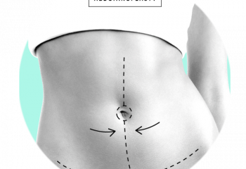 Abdominal Lift (Tummy Tuck)