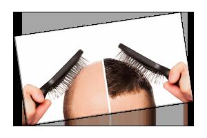 Hair Transplant During Covid19