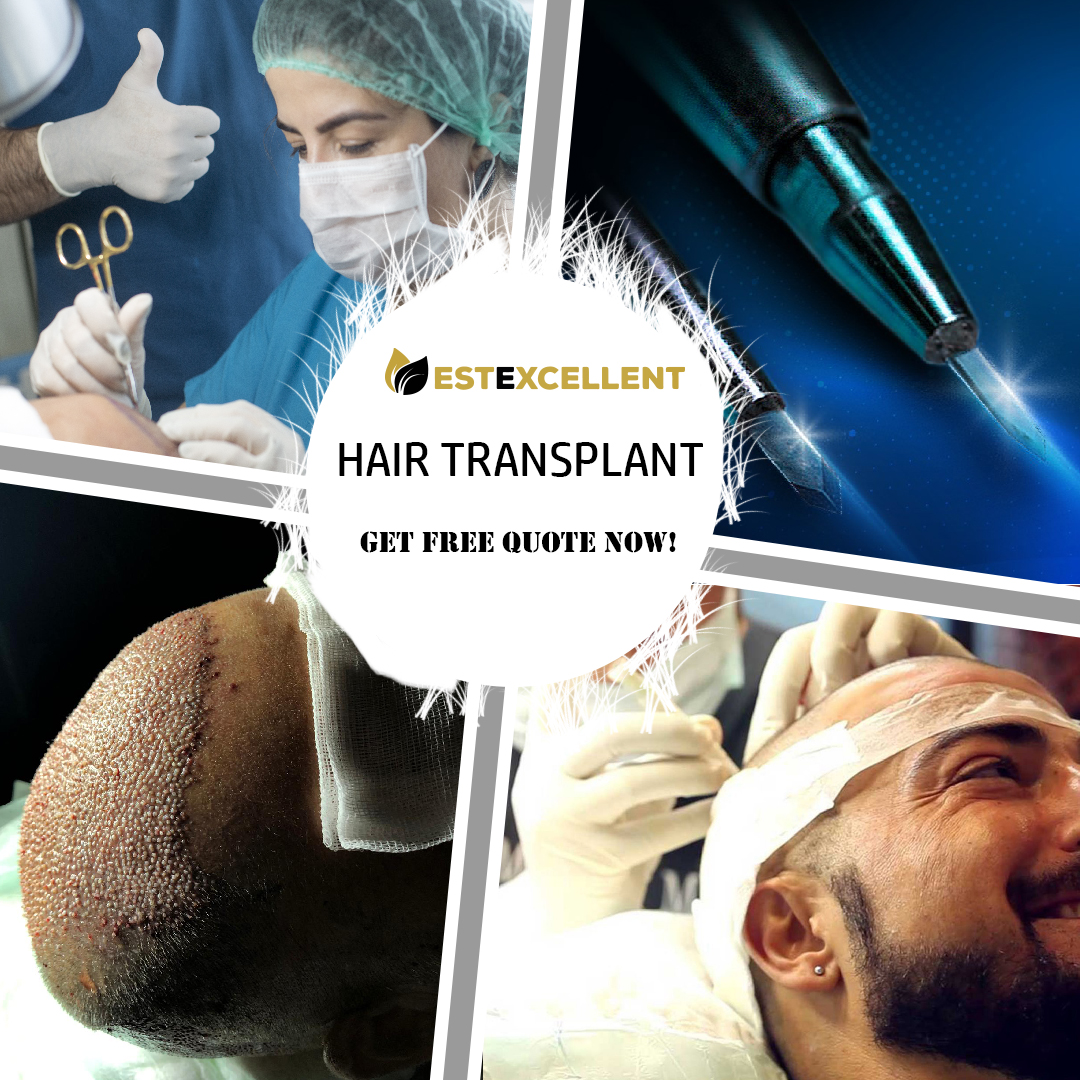 WHAT SHOULD BE CONSIDERED WHEN CHOOSING A HAIR TRANSPLANTATION PLACE?