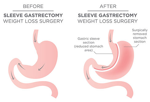 How Bariatric Surgery can change your life?