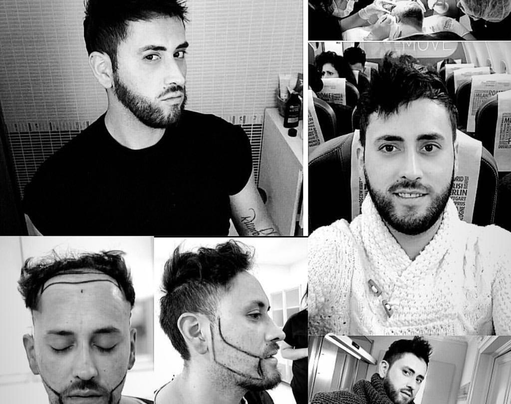 Hair transplant surgery in Turkey