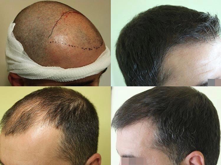 hair transplant visit www.estexcellent.com