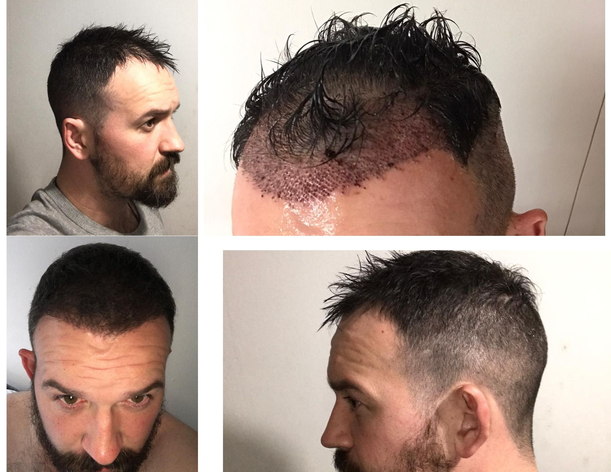Is a hair transplant permanent?