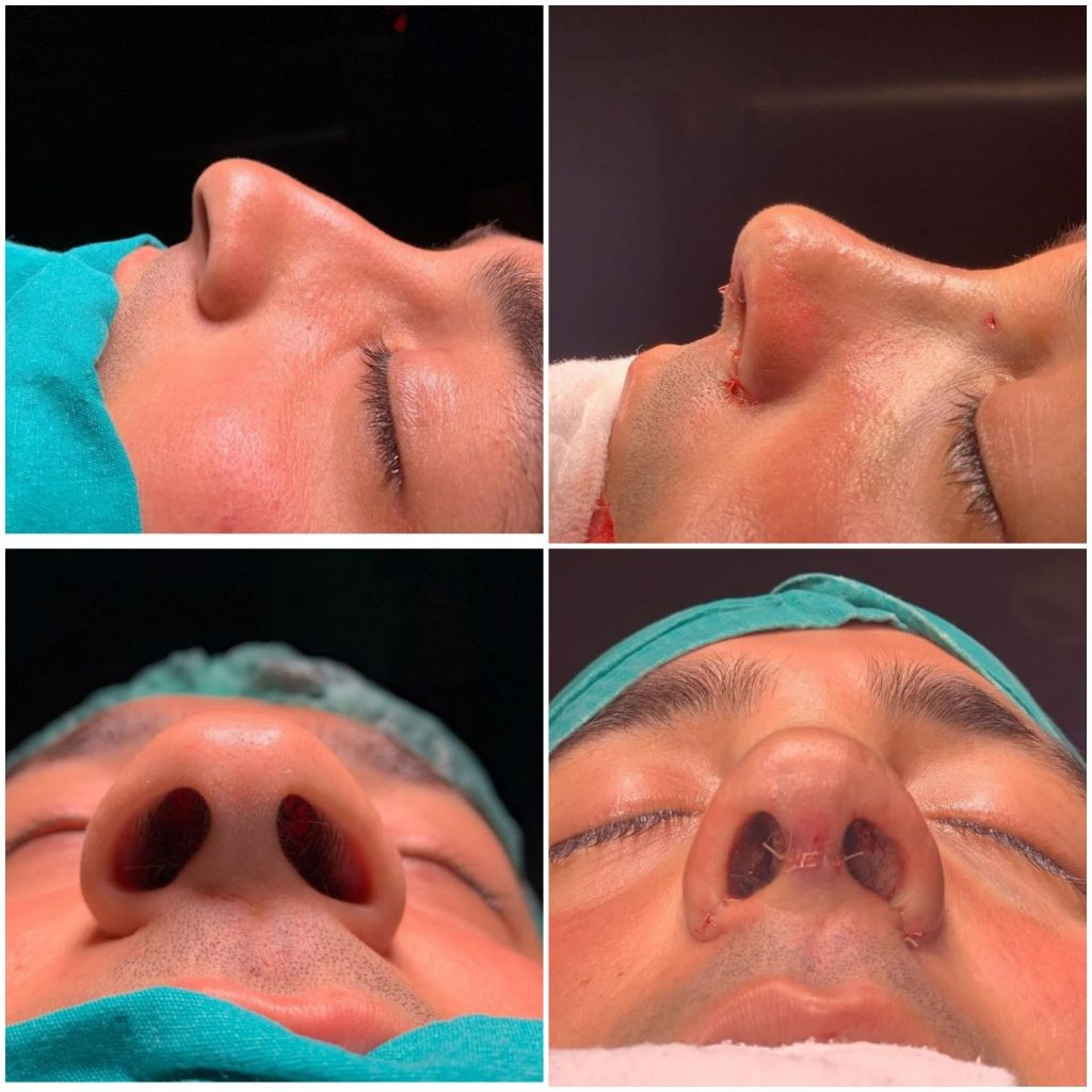 Rhinoplasty Surgery in Turkey