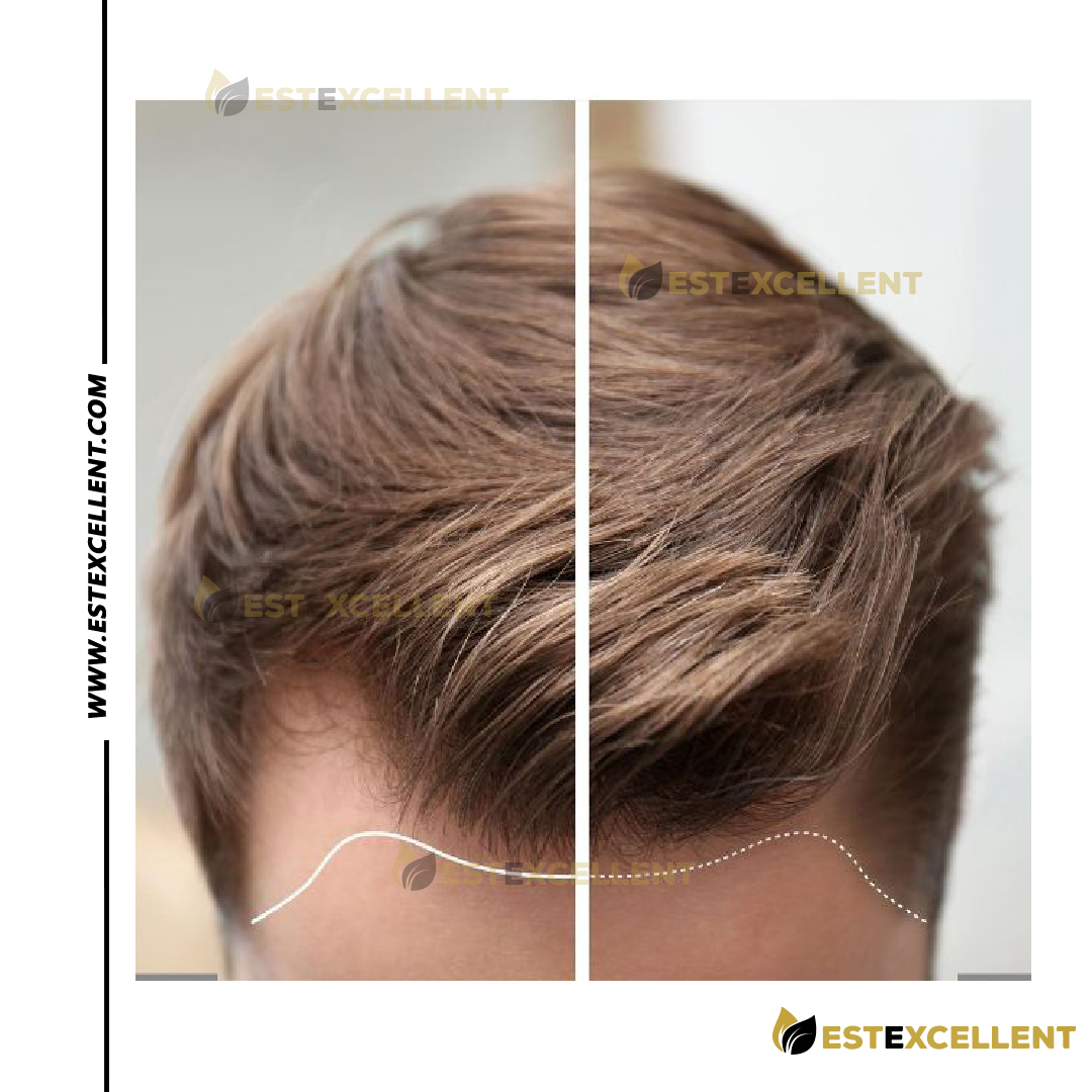 How hair transplant can change your life?