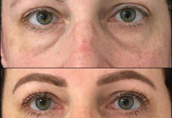 Eye bag and eyelid Surgery in Turkey