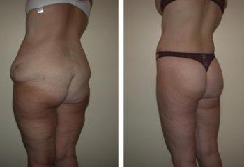 Abdominoplasty Surgery In Turkey